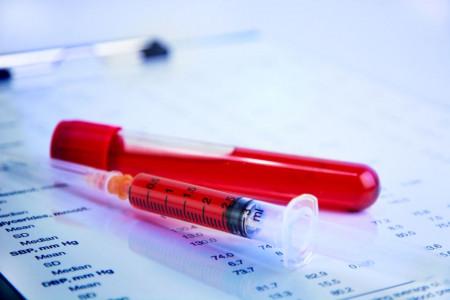هر آنچه که باید در مورد آزمایش RBC (گلبول های قرمز) بدانید