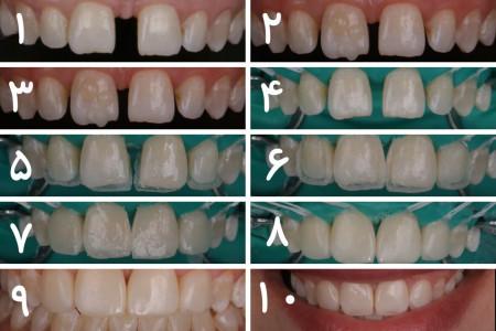 روش بستن فاصله بین دندان ها