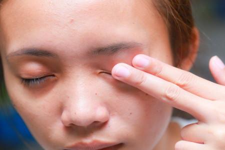 چگونه خال روی پلک چشم را بدون جراحی برداریم؟