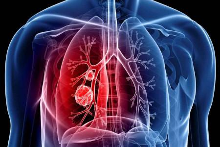 بارزترین نشانه های سرطان ریه و راههای پیشگیری و درمان آن