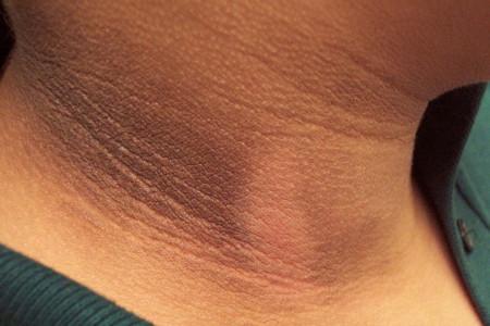 تیره شدن پوست در دوران بارداری چه علتی دارد؟