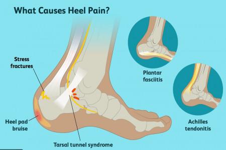علت درد پاشنه پا و 10 روش خانگی برای درمان آن