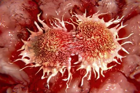 چگونه سرطان نگیریم؟