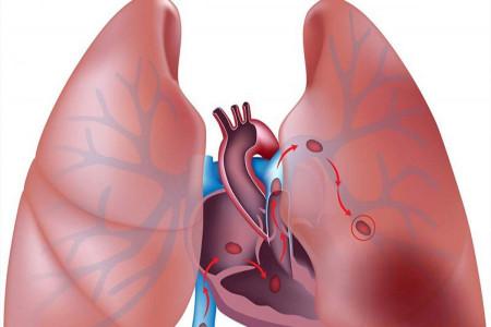 علت چسبندگی ریه چیست و چگونه این عارضه را تشخیص دهیم ؟