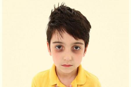 علت تیرگی دور چشم نوزادان چیست و چگونه درمان میشود ؟
