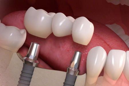 نارسائی ایمپلنت دندان : 10 نشانه بارز شکست در ایمپلنت دندان