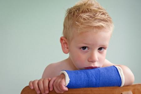 راههای تشخیص و درمان خانگی شکستگی استخوان در کودک