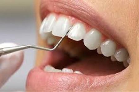 مراحل جرم گیری دندان : جرم گیری دندان چگونه انجام می شود ؟