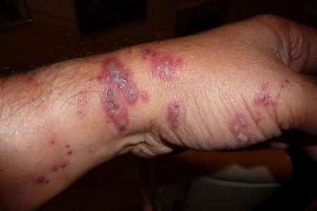 علائم و راههای درمان بیماری طاعون خیارکی