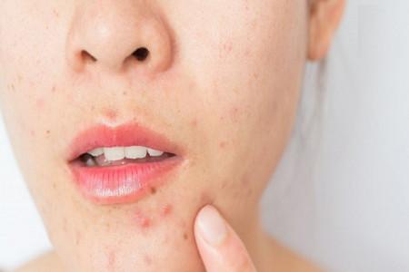 آیا مصرف ویتامین B12 باعث جوش میشود ؟
