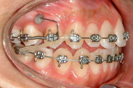 موارد کاربرد درمان ارتوسرجری (ارتودنسی و جراحی فک)