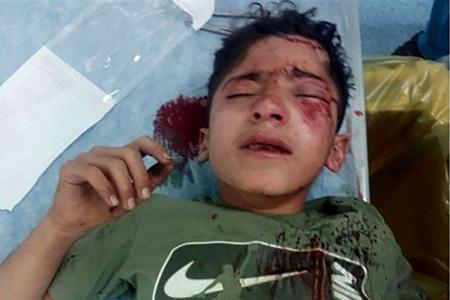سقوط مانی هاشمی کولبر 14ساله از کوه