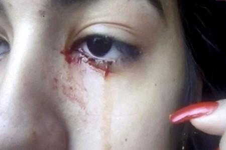 دختری 15 ساله که خون گریه می کند !
