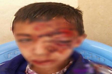 سقوط وحشتناک یک دانش آموز از کوه بخاطر اینترنت و شبکه شاد ؟!
