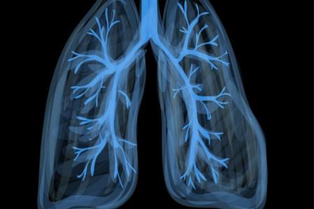 لیست پزشکان فوق تخصص ریه در کرج به همراه آدرس و تلفن