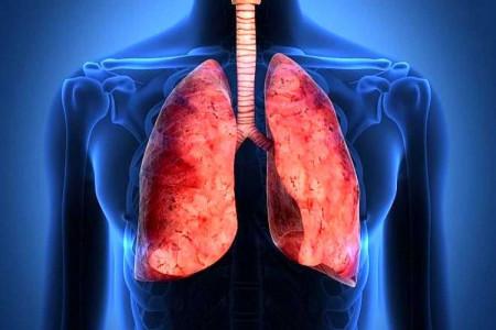 پزشکان فوق تخصص ریه در سمنان به همراه آدرس و تلفن