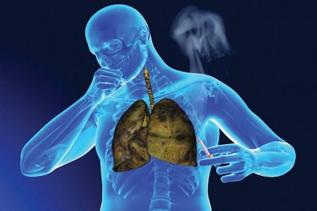روز جهانی سرطان ریه در سال 99 چه روزی است ؟