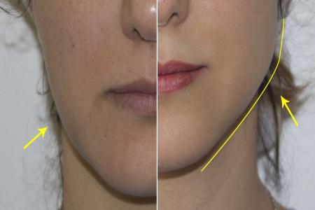 زاویه سازی صورت با استفاده از تزریق ژل به فک
