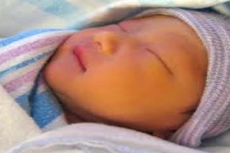 زردی نوزاد را سریعا درمان کنید