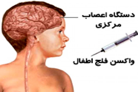ضرورت واکسیناسیون فلج اطفال
