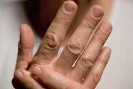 بیماری شایعی به نام رماتیسم مفصلی