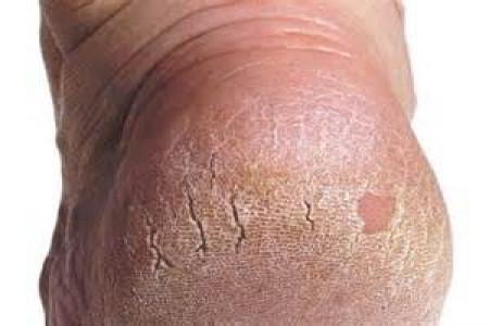 چرا ترک پا به وجود می آید؟راه درمان آن چیست؟