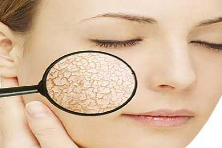 نکات مهم برای جلوگیری از خشکی پوست در پاییز