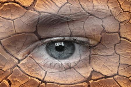 خشکی چشم چیست؟آیا از نحوه جلوگیری از خشکی چشم آگاهی دارید؟