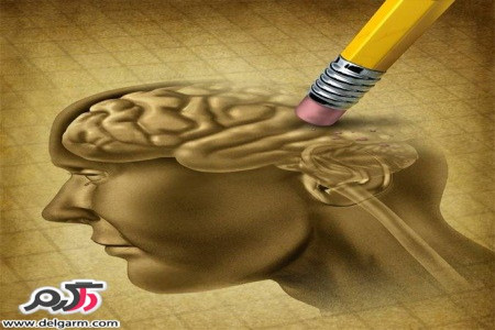 معرفی نشانه های اولیه مبتلا شدن به آلزایمر