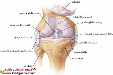 درمان پارگی رباط داخلی زانو + عکس