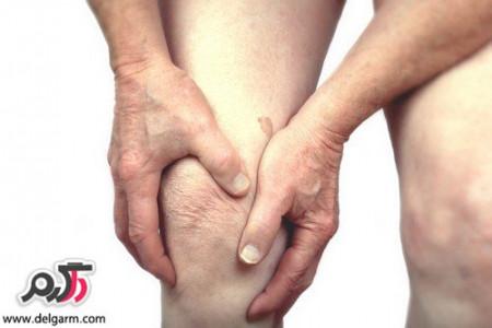 چگونه خطر آرتروز را کم کنیم؟