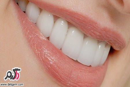 چگونه ایمپلنت دندان انجام بدیم؟به همراه تصاویر و فیلم
