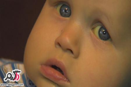 زردی نوزادان در بدو تولد + درمان خانگی