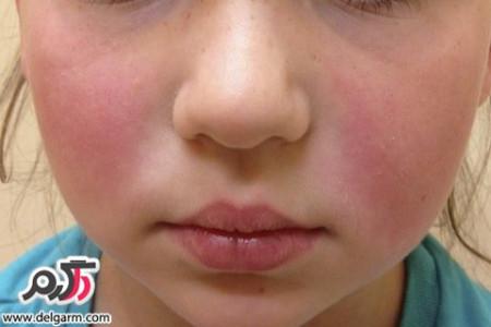 همه ی آنچه که باید درباره ی بیماری لوپوس بدانیم