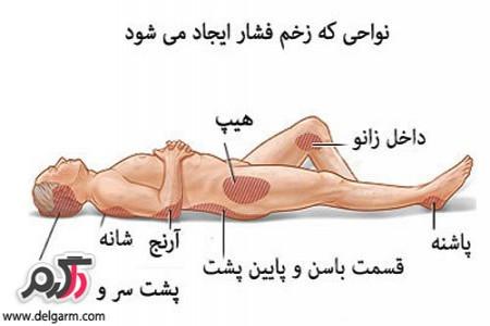 پیشگیری و درمان زخم بستر
