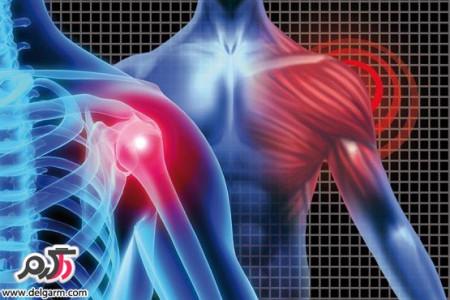 علائم و درمان پارگی تاندون کتف و شانه