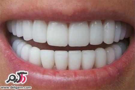 مضرات پودرهای سفید کننده دندان چیست؟