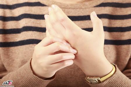 درمان روماتیسم شدید مفصلی + کاهش درد آرتریت روماتوئید