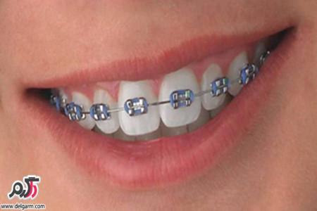 علت پوسیدگی دندانها در زمان ارتودنسی + درمان