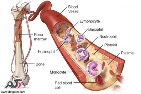 سرطان مولتیپل میلوما و درمان این سرطان