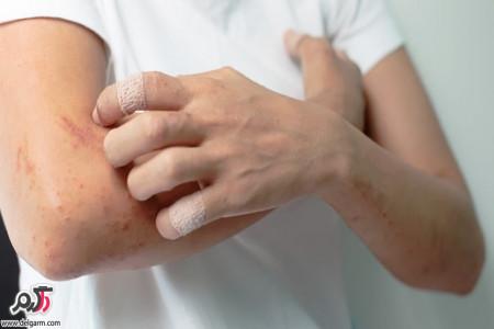کهیر بیماری پوستی؛علائم و درمان این عارضه