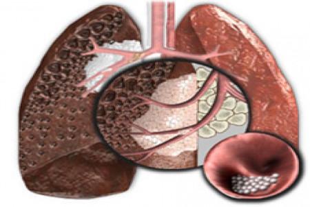 سرطان ریه چیست و چگونه می توان از سرطان ریه پیشگیری کرد؟