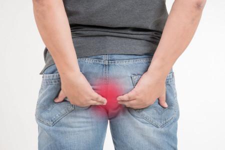درمان فیستول مقعدی (آبسه)