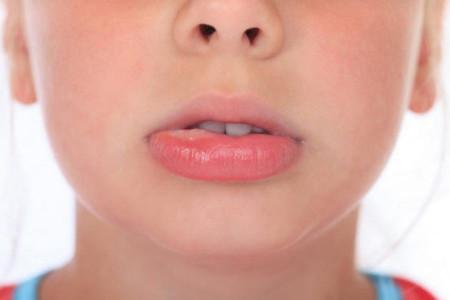 علل ، علائم و راههای درمان ورم لب