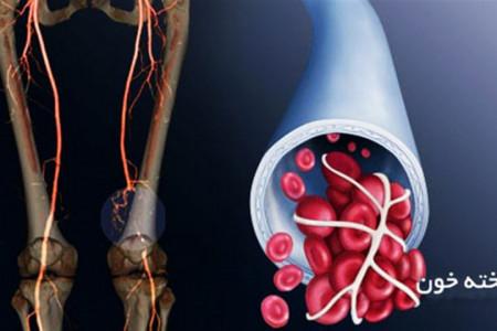 لخته شدن خون و عوارض بسیار خطرناک آن