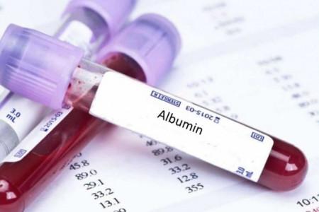 علت درخواست آزمایش آلبومین (Alb) چیست؟