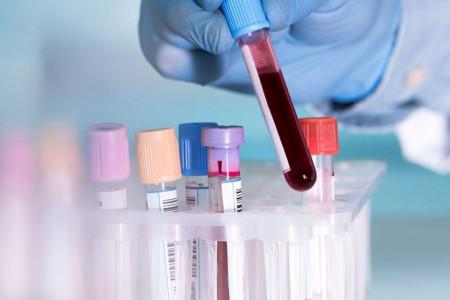 بررسی تومورهای تخمدان