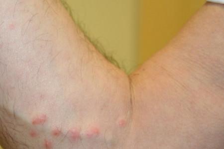 بهترین و بدترین مواد غذایی برای التهاب پوست