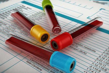 دلایل اصلی بالا و پایین شدن PDW در آزمایش خون چیست ؟