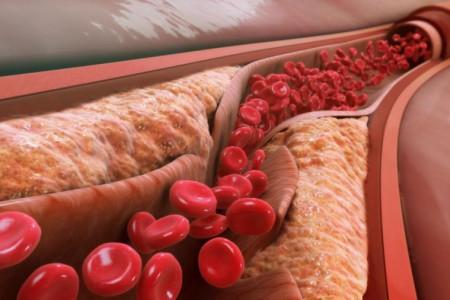 میزان نرمال سطح کلسترول خون در هر فرد چه قدر است ؟